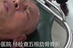 杭州大伯遭飞来横祸 骑车竟五根肋骨断了