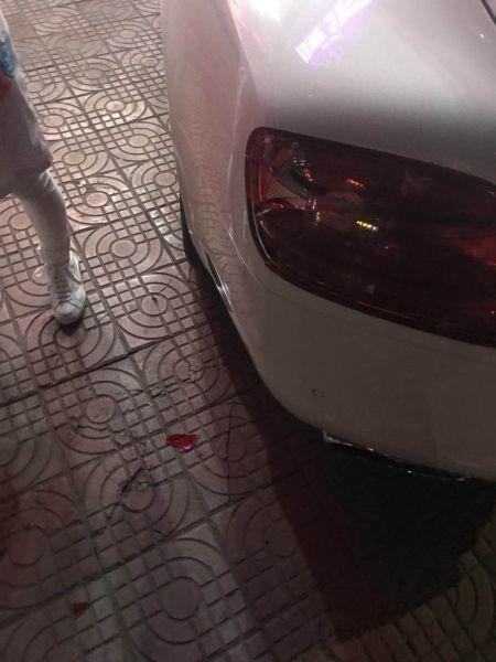 被踹坏的破损的车尾灯。警方提供