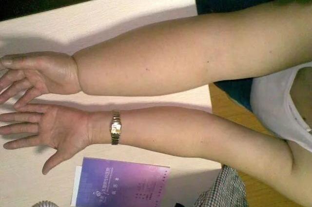 杭州一女子右手臂被蚊子叮咬 几天后整个手臂肿起来