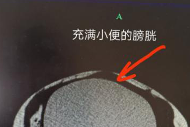 杭州大妈三天未解小便 膀胱撑到常人三倍大