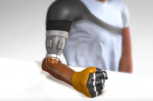 假肢也能产生触觉 宁波设计出更智能的人造皮肤