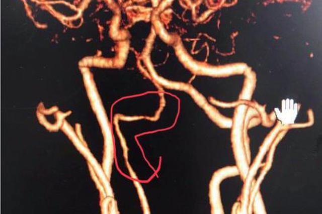 杭一程序员推拿后患脑中风 医生:系不当颈部按摩导致