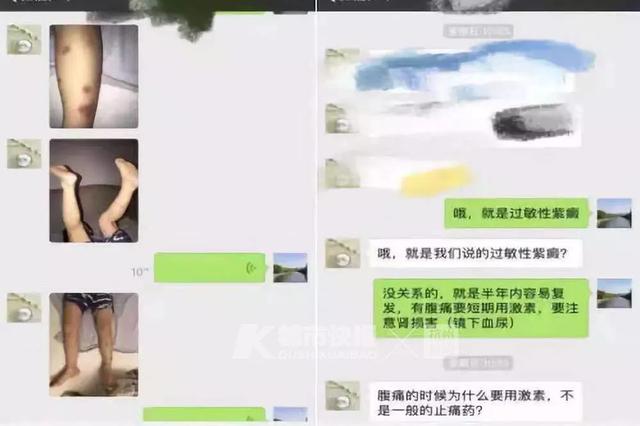 从英国打飞的回杭州求医 5岁儿子身上出现紫红色瘀斑