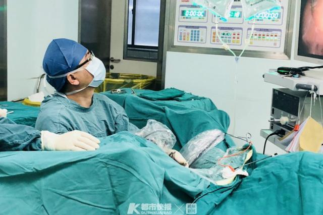多由前列腺增生症引起 浙大爷2年膀胱长出30多颗结石