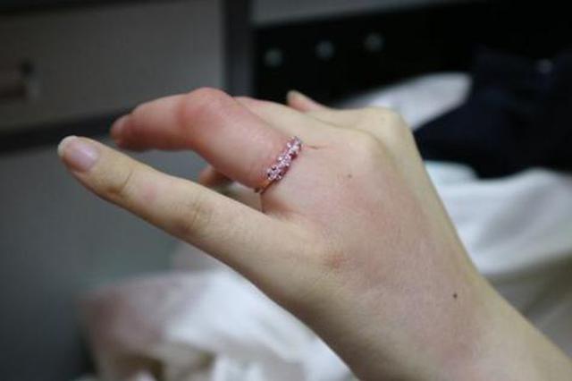 杭州1对新人草坪婚礼上现意外 新娘被虫咬婚戒取不下