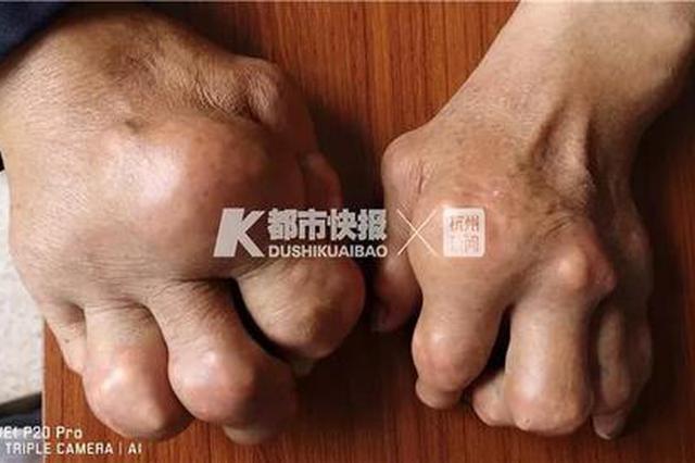 浙江一男子手指肿得像生姜 医生:大吃大喝惹的祸