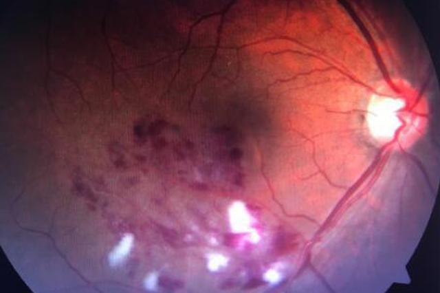 杭州50岁大伯右眼突然看不清 检查发现患上眼中风
