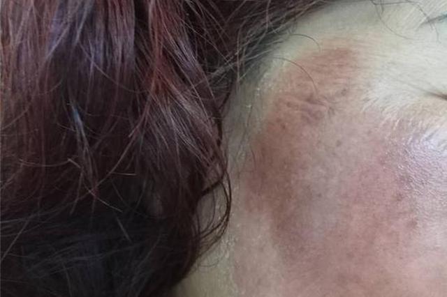 宁波爱美阿姨在家自制蜂蜜面膜 结果脸部过敏险毁容