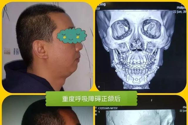 杭州38岁副教授决定锯断下巴 因从小的习惯没重视