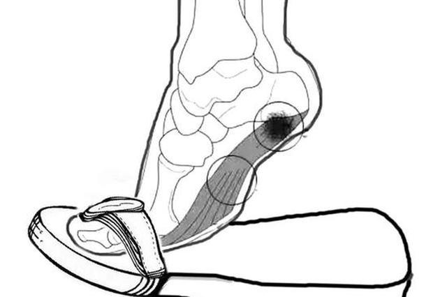 杭26岁长跑健将差点把自己的脚毁了 只因穿了这种鞋