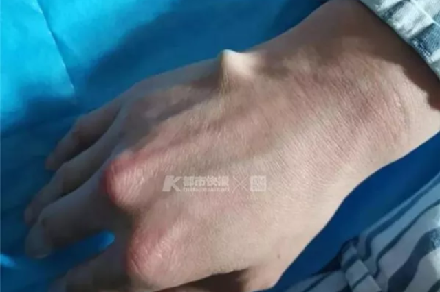 杭州医院最近半夜接诊多位小伙 全是右手掌心插筷子