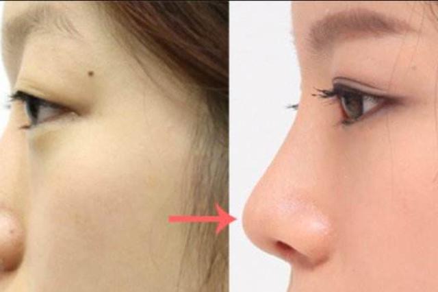 浙江一女子鼻子打针致眼瞎 整形医师:注射美容需谨慎