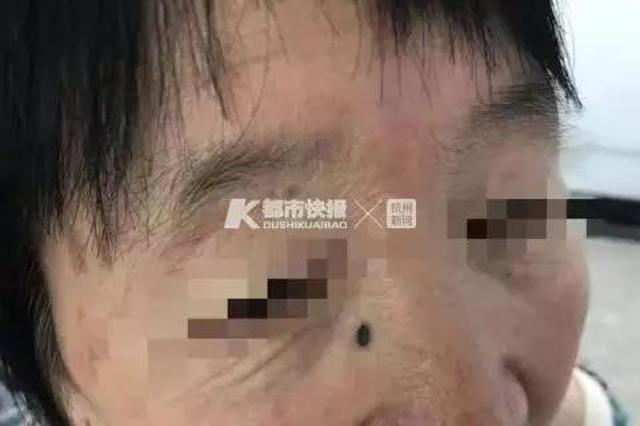 浙江7旬老人脸上突然多颗美人痣 医生:这痣可不简单