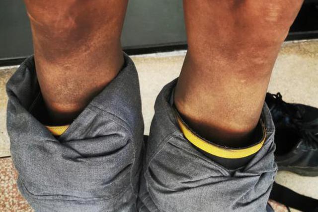 一天扑火9次 衢州22岁小伙隔着防护服被熏成火腿