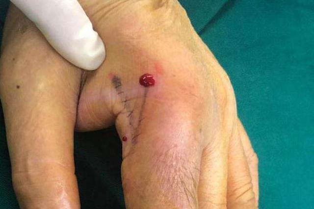 浙江海鲜个体户杀鱼被刺伤 手指肿成萝卜粗差点截肢
