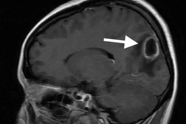 杭28岁女子抠青春痘抠出脑脓肿 动了开颅手术才保住命