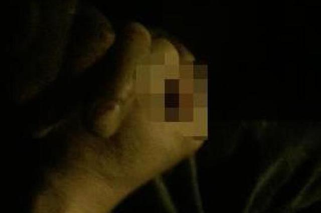 宁波1对夫妻吵架后男子剁手指 警员飞车急送医院救治