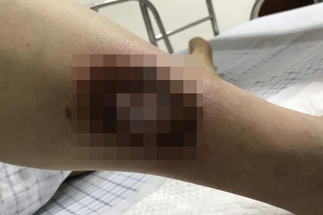 浙江1小伙踩水坑惹毒上身 医生:严重时会发生败血症