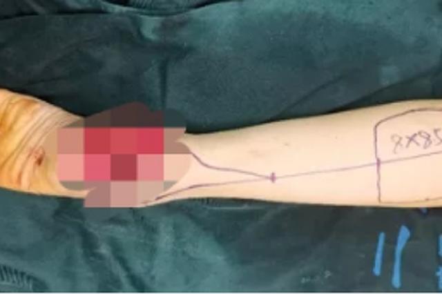 浙江1女子27年前车祸留下的伤疤 居然一点点变成了癌