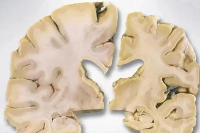 探访浙大医学院中国人脑库 解开阿尔茨海默病的谜底