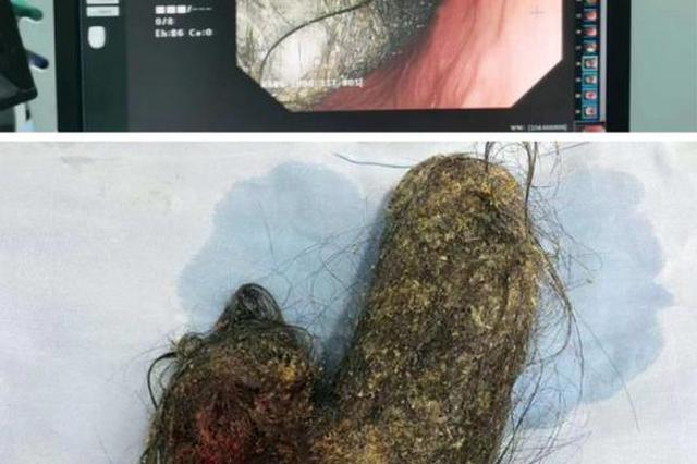 杭初三女生每天肚子痛 医生从她胃里取出团块状毛发