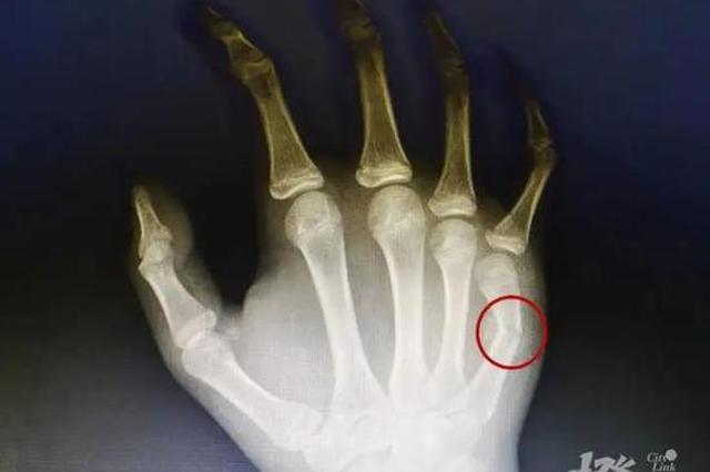 浙江一14岁孩子和母亲吵架 一拳打穿门板后手指骨折