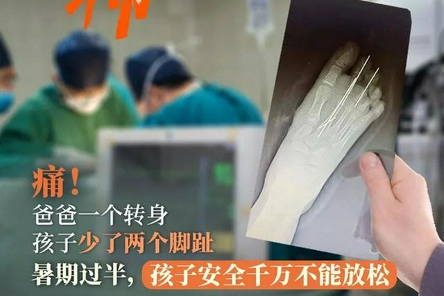 杭州医院接诊多例严重创伤儿童 暑期孩子安全不可放松