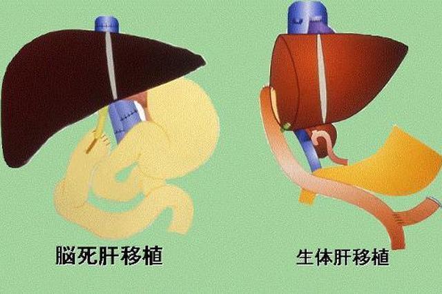 明年起肝移植可报销七成 浙江省4家医院纳入试点