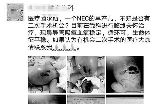 重庆1早产儿接受临终关怀 18小时送杭州重燃生命希望