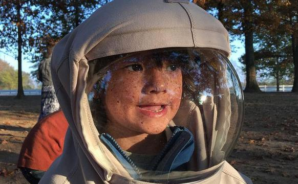 """男孩对阳光过敏 出门变身""""宇航员"""""""