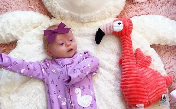母亲乐观接受唐氏综合症女儿的出生