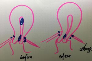 协和张羽的诊间日记:又查获一个子宫内膜异位症