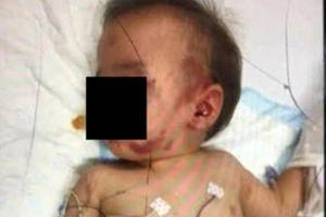 一岁半男婴遭母亲男友虐打 全身伤痕累累脊柱错位