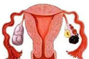多囊卵巢和巧克力囊肿啥区别?