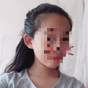 14岁女孩接受骨髓移植后 体内有了男性的染色体