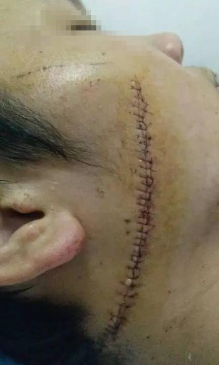 张哲两边的脸上都留下了伤痕。家属供图