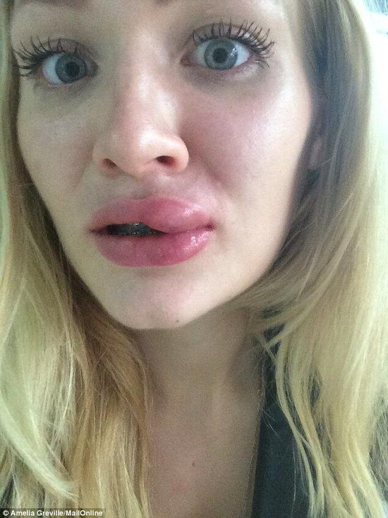 女老师凯莉_英籍女教师网购廉价美容产品 用后唇部溃烂