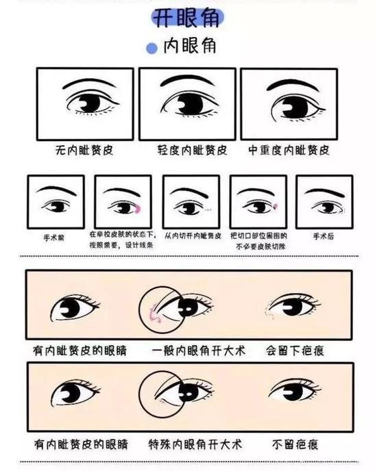 北京公立医院开眼角
