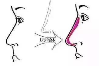 鼻�9�*yl#��+_l型鼻假体