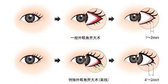 彩妆开眼角视频全过程