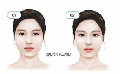 肉毒素瘦脸针品牌
