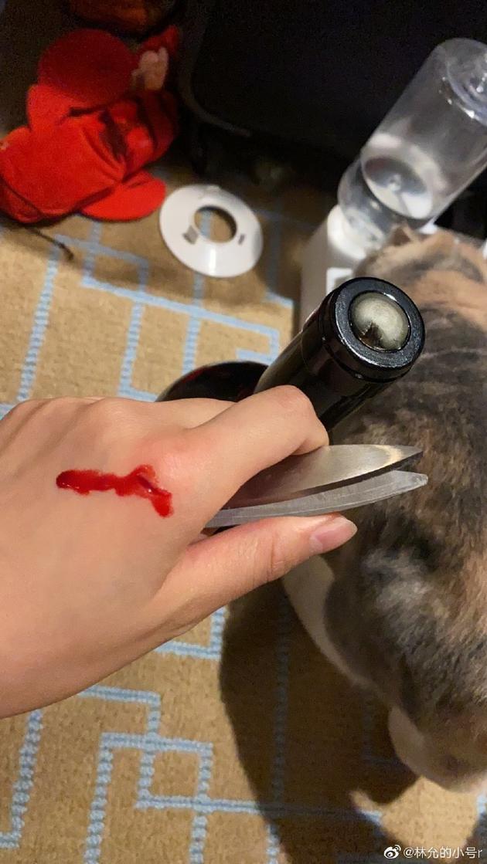 林允半夜想喝红酒意外划伤手 带血伤口清晰可见