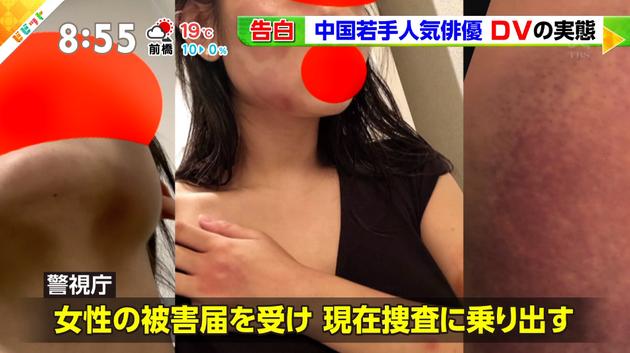 日本電視臺報道