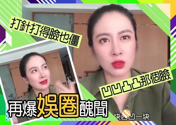 叶璇称大众不能接受的是丑 曝女明星朋友整容失败