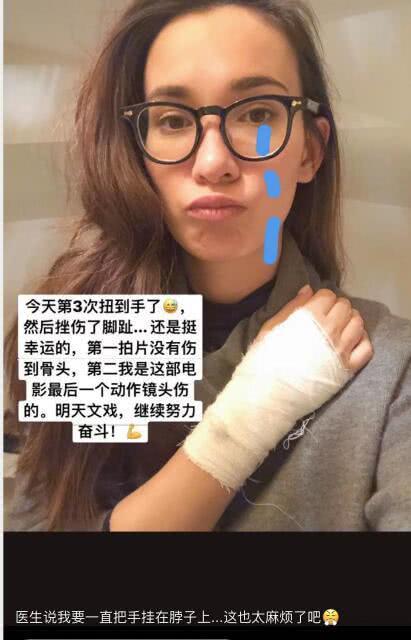 卢靖姗受伤
