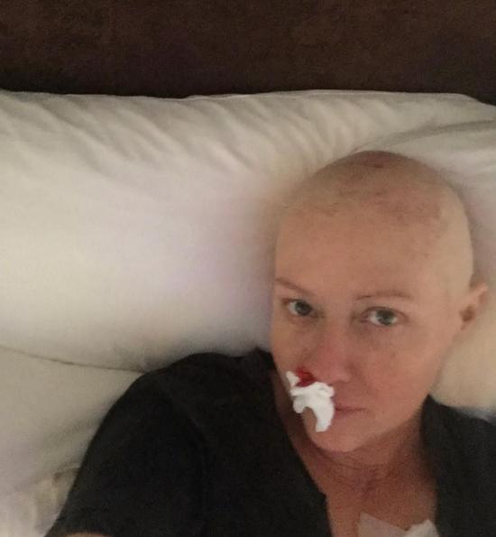 莎侬由于化疗大量流鼻血