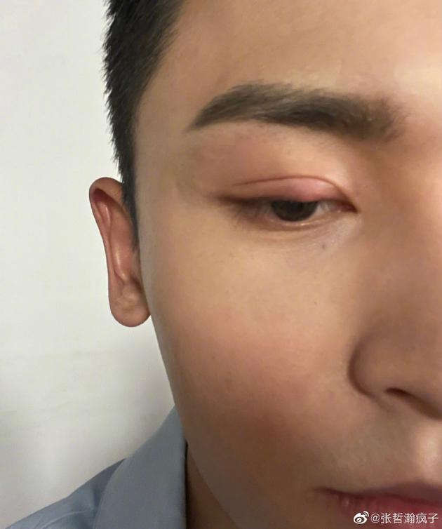 张哲瀚回应画红眼影直播:长麦粒肿抬眼皮费劲