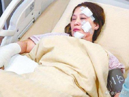 60岁武打女星疑被误喷汽油 片场起火灼伤脸部