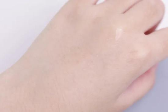 Skin acne allergy? It's because you don't know what skin micro ecology is插图25