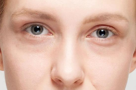 People with high face value are also troubled by dark circles? I suggest you take a look at this article插图6